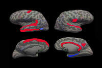 Autism brain differences