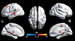 Autistic and non-autistic brain differences isolated for first time