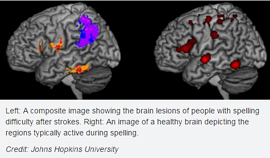 brain_lesions.png