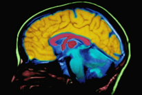 brain_mapping.png
